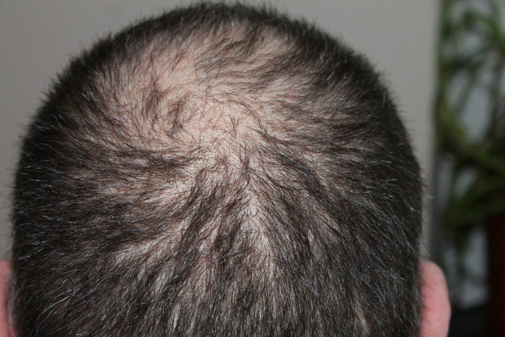 איך טורקיה הפכה - ליעד פופולארי לטיפולי השתלות שיער